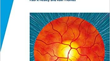 Fast Facts Glaucoma 1st Edition