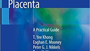 Pathology of the Placenta A Practical Guide 1st ed.