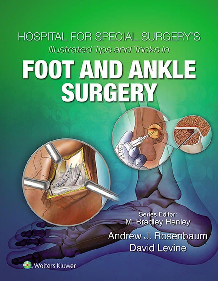 Hospital for Special Surgery's Illustrated Tips and Tricks in Foot and Ankle Surgery 1st Edition