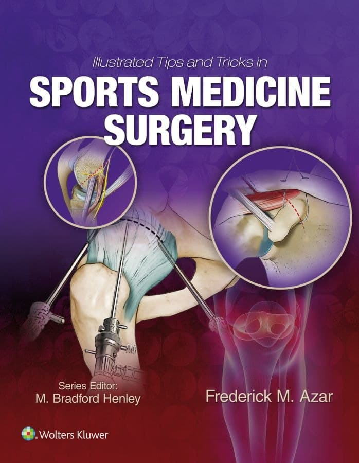 Illustrated Tips and Tricks in Sports Medicine Surgery 1st Edition