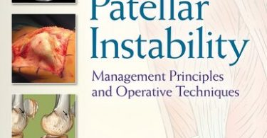 Patellar Instability Management Principles and Operative Techniques 1st Edition