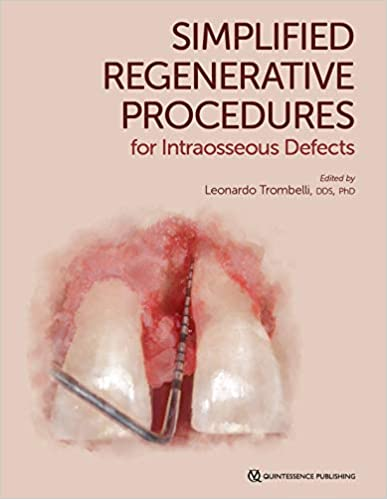 Simplified Regenerative Procedures for Intraosseous Defects 1st Edition