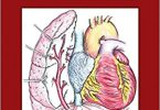 The Complete Reference for Scimitar Syndrome Anatomy Epidemiology Diagnosis and Treatment 1st Edition