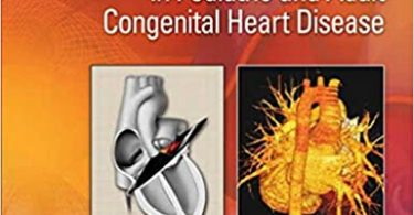 Echocardiography in Pediatric and Adult Congenital Heart Disease 2nd Edition