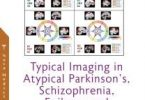Typical Imaging in Atypical Parkinson's Schizophrenia Epilepsy and Asymptomatic Alzheimer's Disease – 1st edition